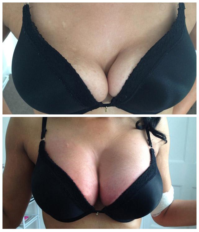 breast 1